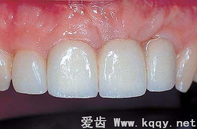烤瓷牙修复镶牙过程(图解)