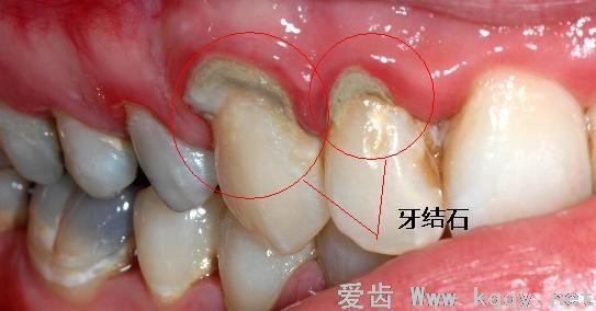 什么是牙结石?(图片)