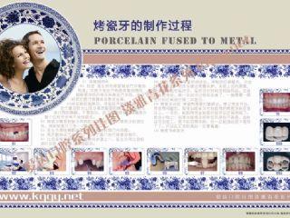 口腔挂图青花瓷古典系列——烤瓷牙过程