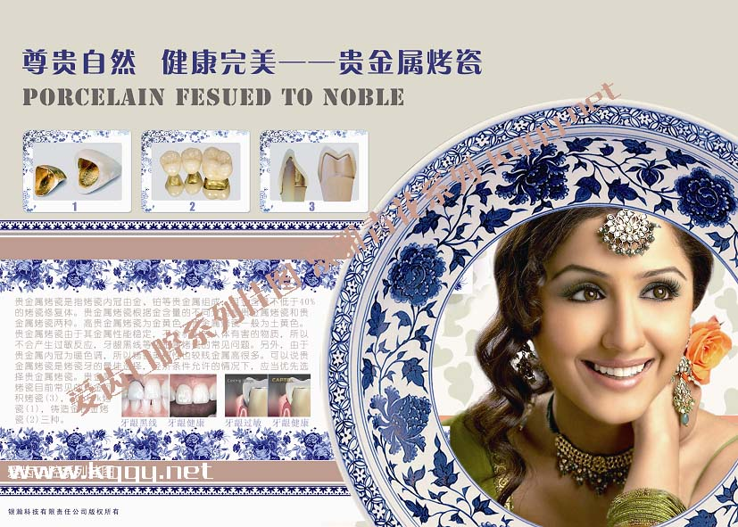 口腔挂图青花瓷古典系列——贵金属烤瓷