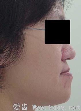反颌是常见的牙齿畸形