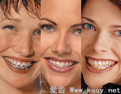 牙齿矫正是否有年龄限制-牙齿矫正常识-爱齿伴侣