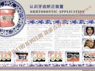 淡雅青花系列挂图——牙齿矫正装置