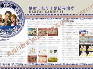 淡雅青花系列挂图————龋齿预防与治疗