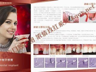 爱齿口腔挂图玫红系列——种植牙