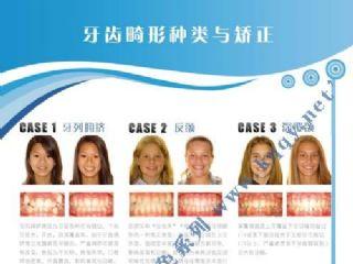 爱齿竖版蓝色系列――牙齿矫正病例