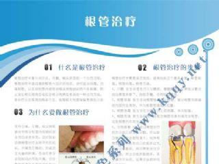 爱齿竖版蓝色口腔挂图――根管治疗