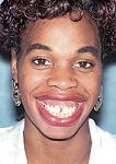 开颌外科手术矫正图解