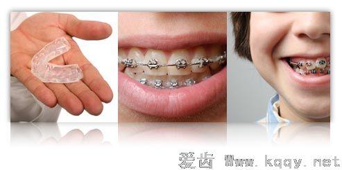 牙齿矫正器-爱齿伴侣
